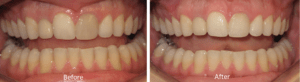 Dental before and after photos in McMinnville and Yamhill County